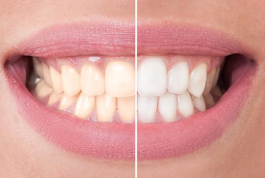 Smile arts white teeth coclors yellow nyc