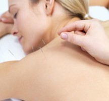 Acupuncture-treatment-nyc